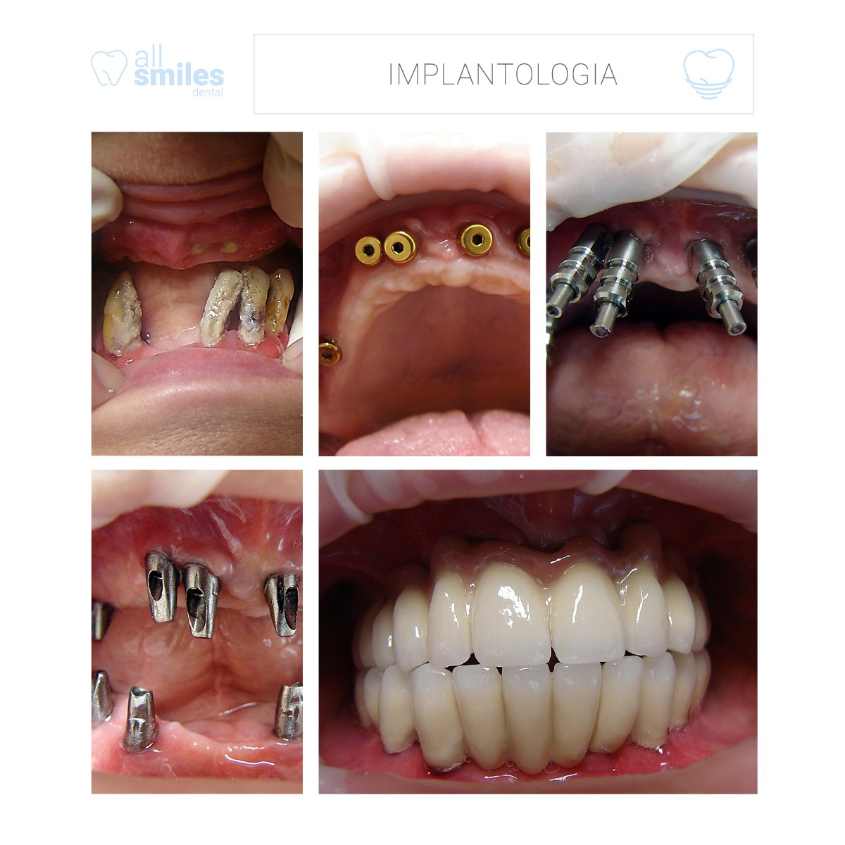 implantologia realizacja